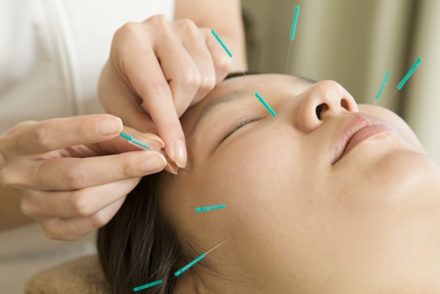Acupunctuur in Doetinchem - Naalden Zetten